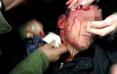 насилие пребит агресия
