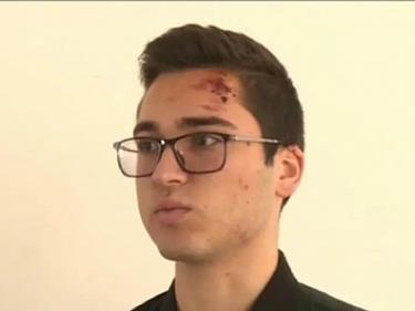 Битото от полицай момче: Качи се върху мен, започна да ме удря и души